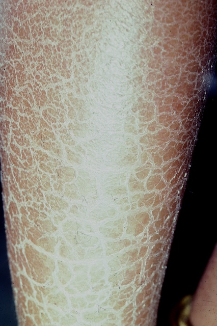 The scaling in ichthyosis is often most prominent over the lower legs.
