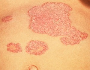 Psoriasis – Another Disorder of the Skin Barrier?