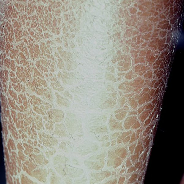 Closed up of lower leg with ichthyosis. Scaling is often most prominent on the lower legs in individuals with ichthyosis.